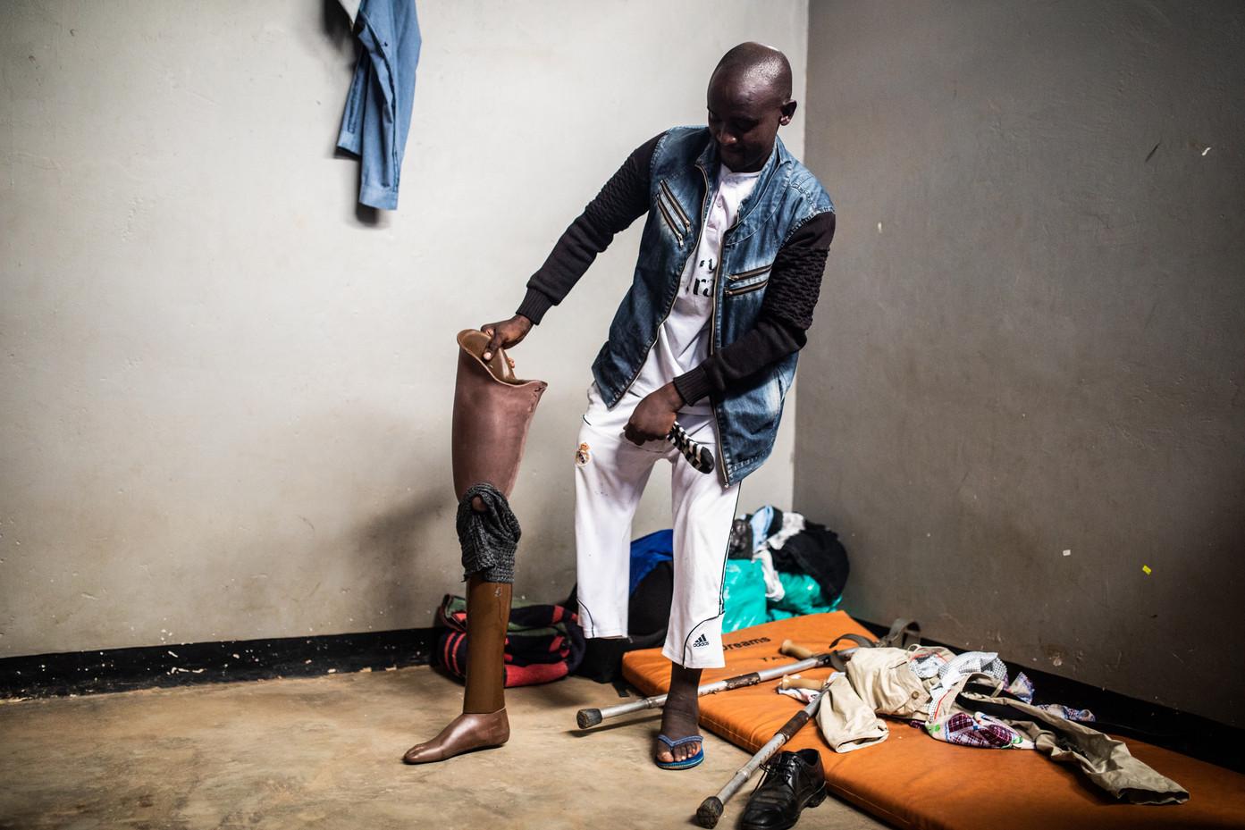 Jafari Dalia from  Democratic Republic of the Congo. He lost his leg on his way to Uganda.