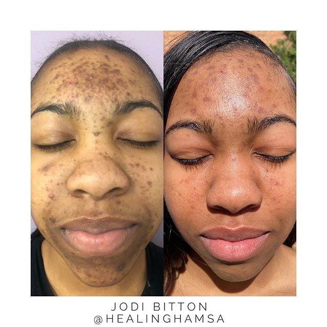 Instagram Skin Spam! 🚨🚨🚨• • I met thi