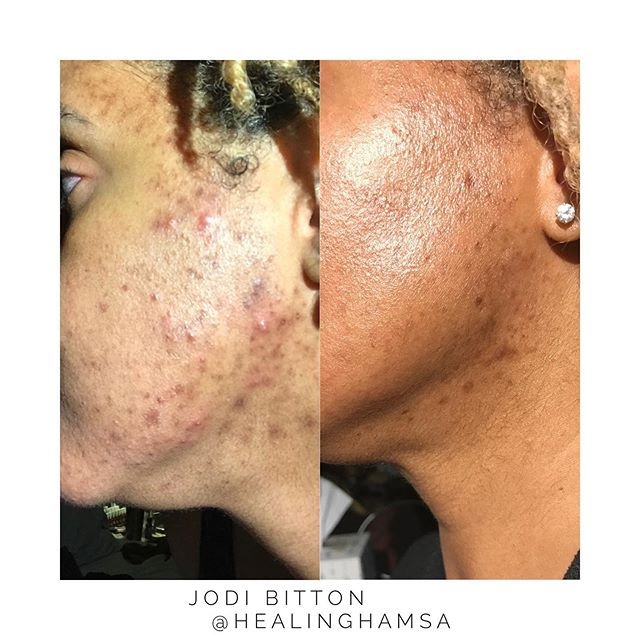 Saturday Skin Transformation 🧖🏽♀️✨• •