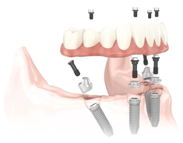 All on 4 full arch dental implants in Puerto Vallarta
