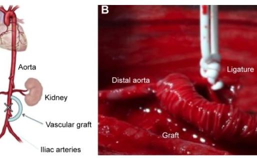 Tissue Engineering Vascular Grafts