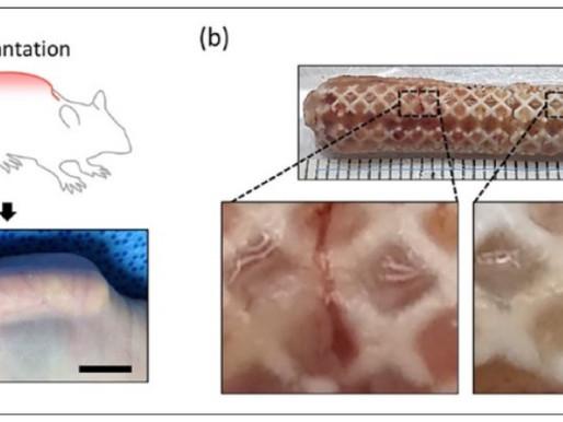 3D Bioprinting of Nasal Cartilage