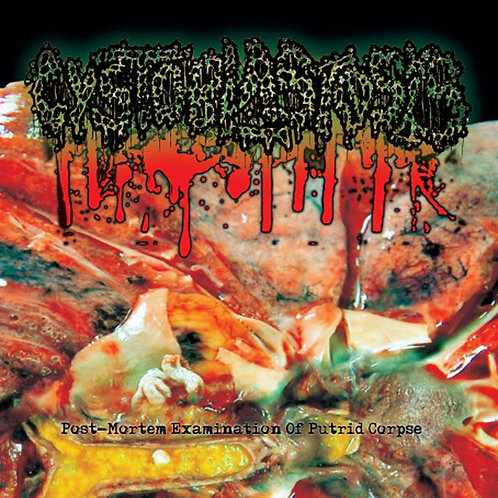 Cystoblastosis - Post - Mortem Examination Of Putrid Corpse CD
