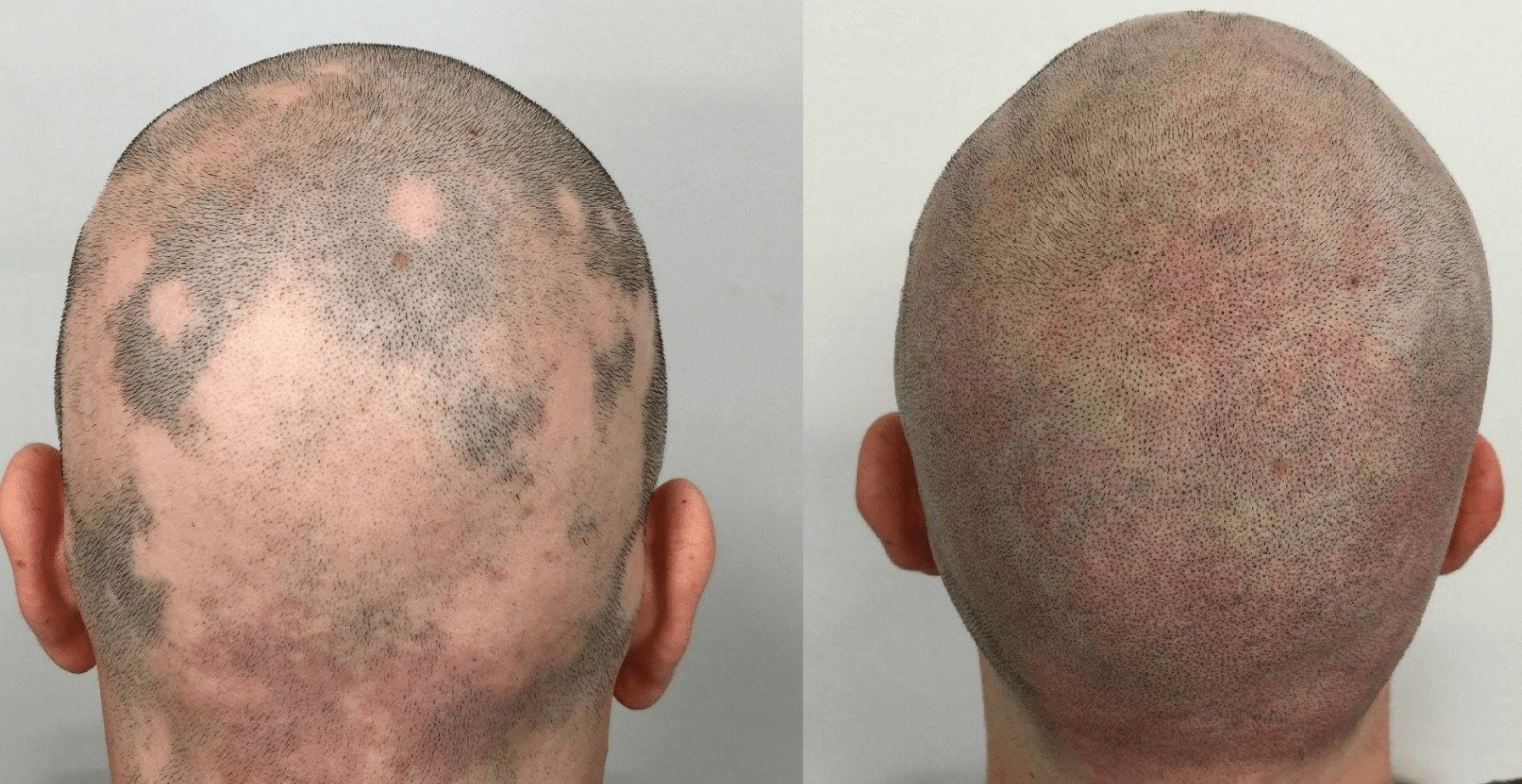 example alopecia