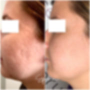 microneedling before_after