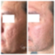 Before_During Microneedling Combo with H