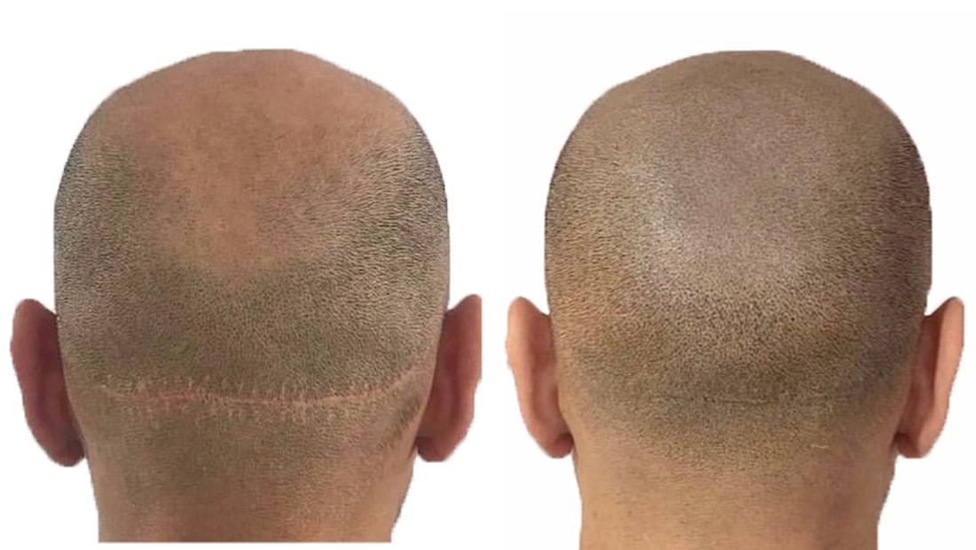 example scar