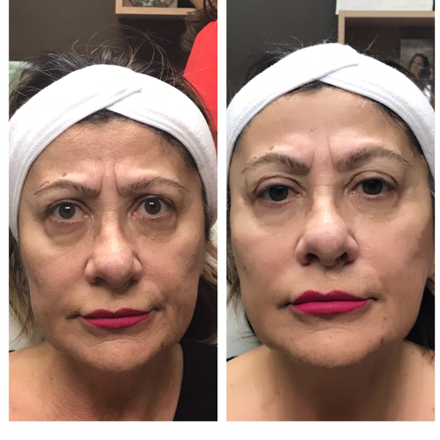 Age: 60's Treatment: Filler