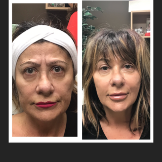 Age: 60's Treatment: Threadlift (stage 2)
