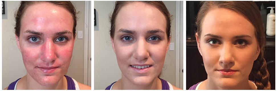 Organic Medical Facials