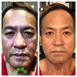 Age: 60's Treatment: Threadlift (Stage Two)