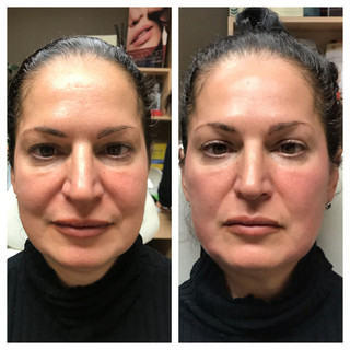 Age: 40's Treatment: Threadlift (Stage One)
