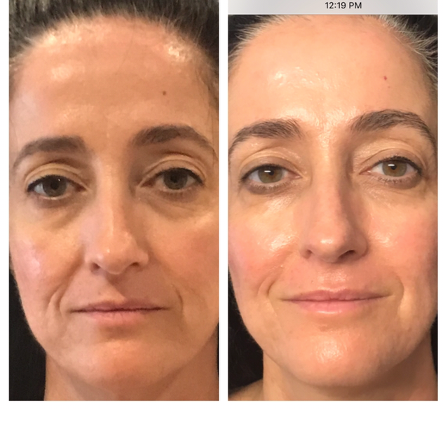 Age: 50's Treatment: Threadlift (Stage One)
