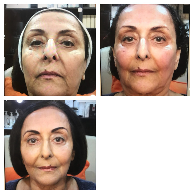 Age: 70's Treatment: Threadlift (stage two)