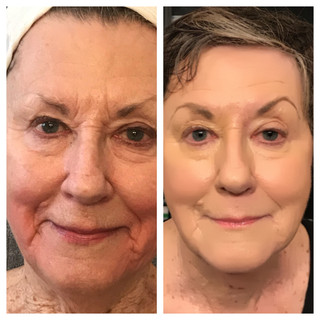 Age: 80's Treatment: Threadlift (stage two)