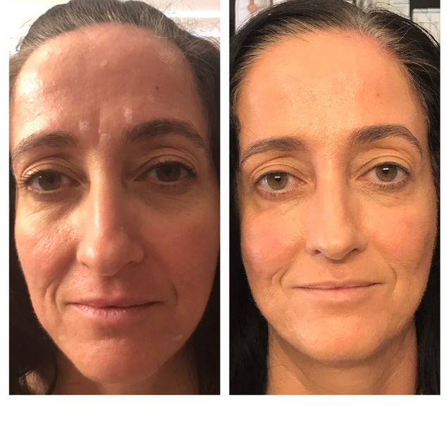 Age: 50's Treatment: Botox & Organic Medical Facial