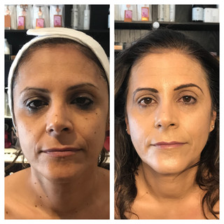 Age: 50's Treatment: Organic medical facial
