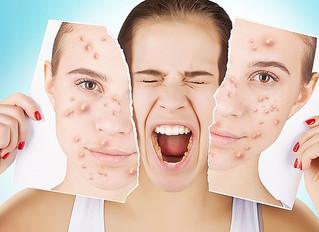 6 Sofortmaßnahmen bei unreiner Haut