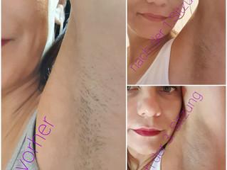 Dauerhafte Haarentfernung mit SHR