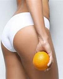 Cellulit.jpg