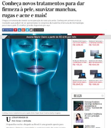 Ultraformer Marie Claire.jpg