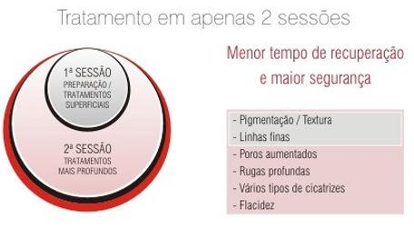 Laser CO2 brasília