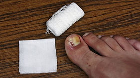 ingrowing-toenail-promotion.jpg