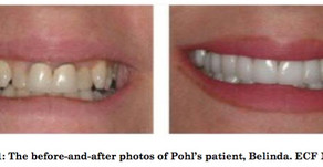 Photos of pearly whites