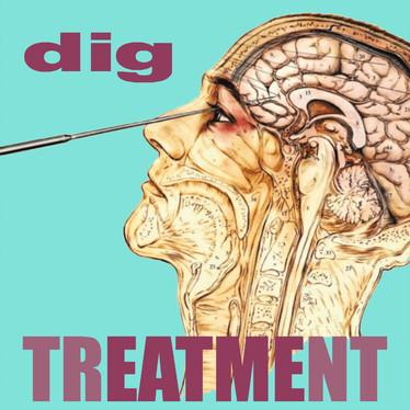 🎬 FRESH FEED - Dig - Treatment