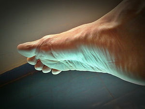 Cuidado de los pies planos