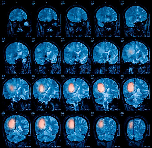 Magnetic resonance imaging (MRI) of the