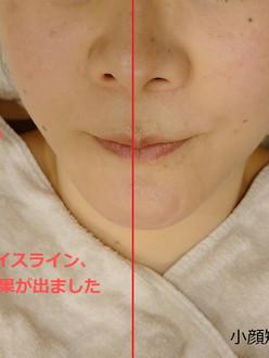 kogaokyousei-facial_edited.jpg