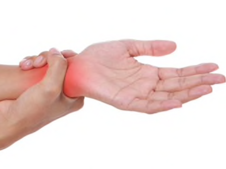 Carpal Tunnel Syndrome: Causes, Symptoms & Treatment