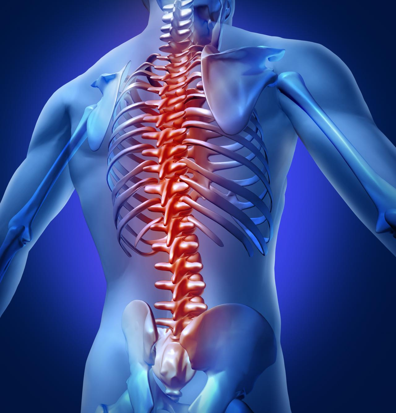 Vertebral subluxations and back pain