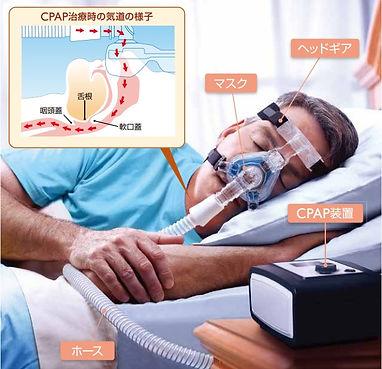 CPAP2.jpg