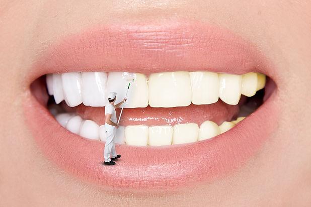 Beautiful teeth. Teeth whitening by the