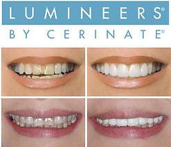 lumineers_examples-logo.jpg