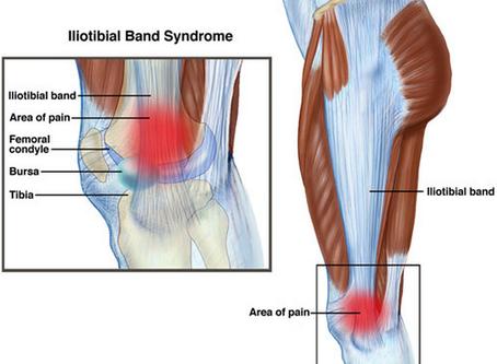 Коліно бігуна або синдром іліотібіального тракту