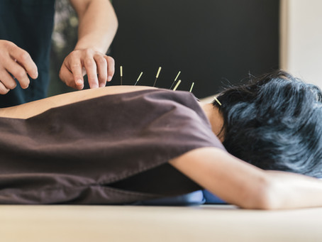 Top Reasons to See an Acupuncturist