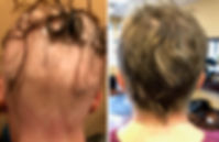 Hair Restoration Before and After.jpg