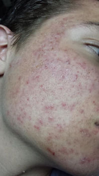 Acne before AC.jpg