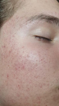 Acne after AC.jpg