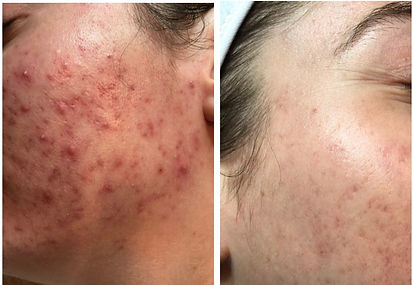 Acne Before and After_HomePage.jpg