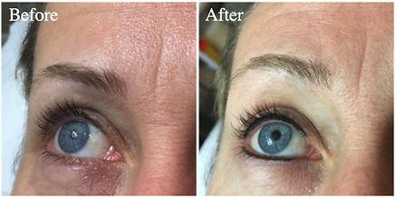 Eyeliner-before-after.jpg