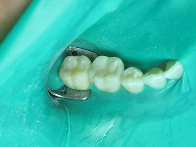 Dental Fillings datdental