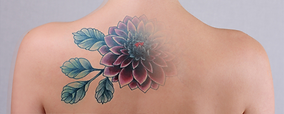 remocao-tatuagem.png