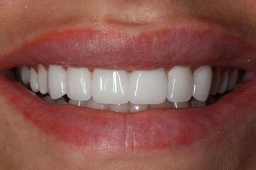 ציפויי חרסינה ציפויים לשיניים בטורקיה מדיקל ביוטי סמייל חיוך הוליוודי.jpeg