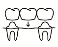 גשרים טיפולי שינייך בטורקיה.png