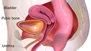 Are You a Pelvic Floor Statistic?