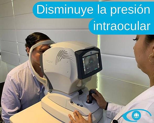 cirugia-laser-glaucoma-beneficios1.png